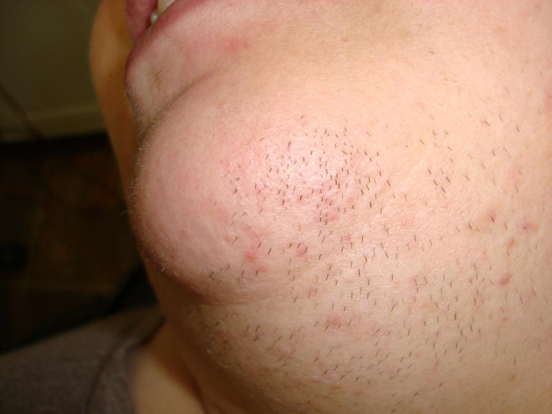 facial hair, electrolysis, permanent hair removal